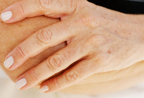 возрастные пятна на руках