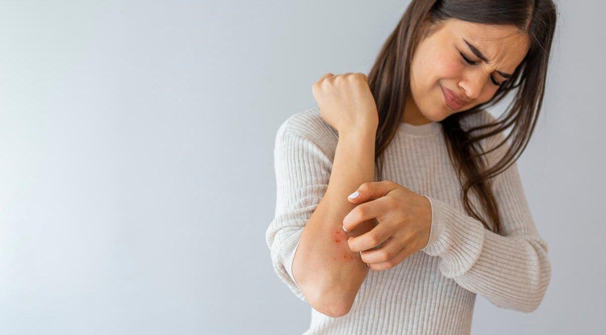 10 важных советов больному псориазом