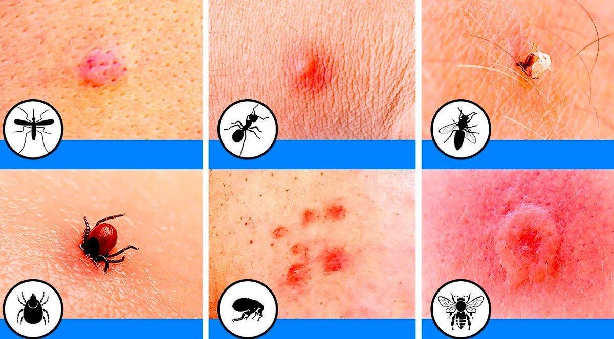 Опасные насекомые и их укусы