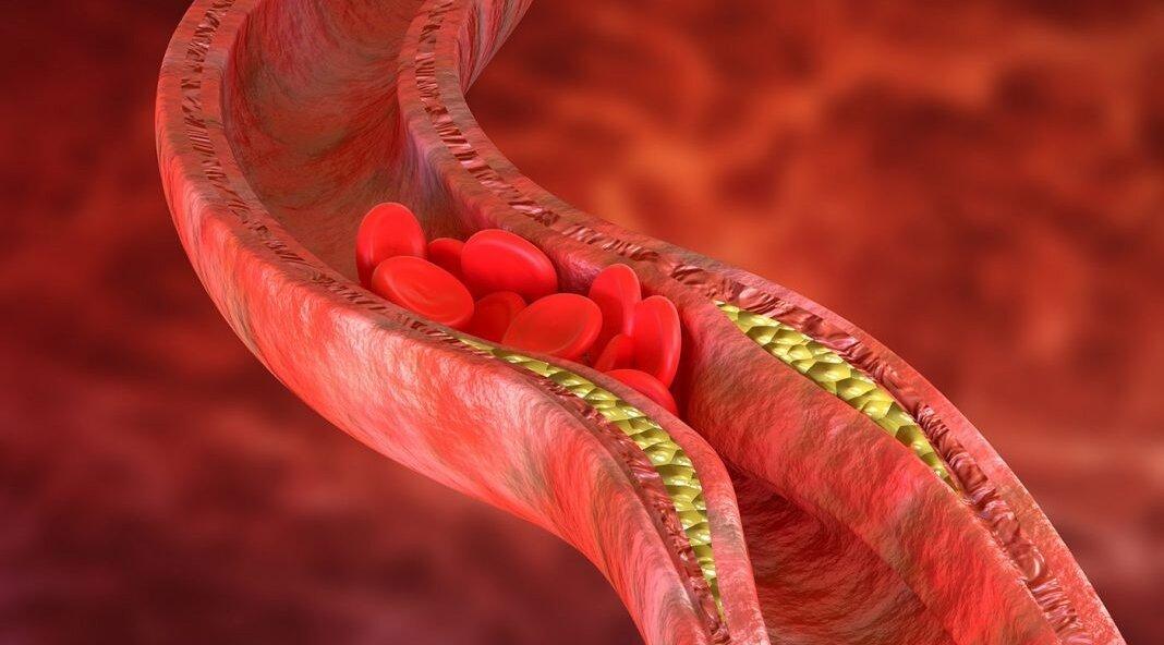 Что такое атеросклероз?