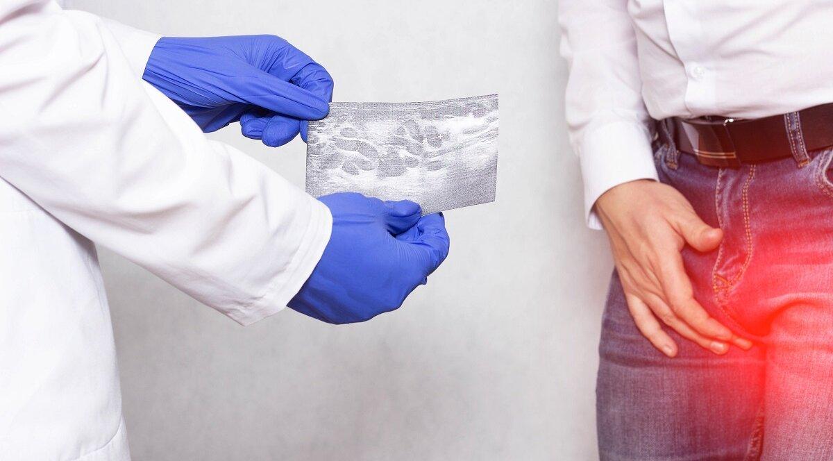 Как обнаружить и вылечить варикоцеле?