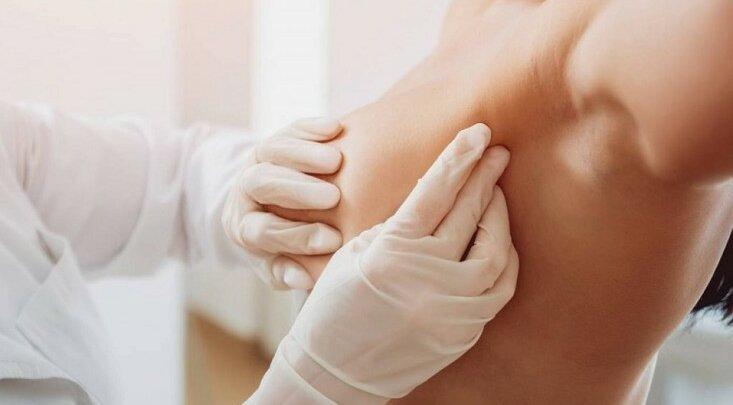 Обстеження грудей: як розпізнати захворювання в домашніх умовах?