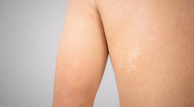 Чому з'являються білі плями на тілі після засмаги?