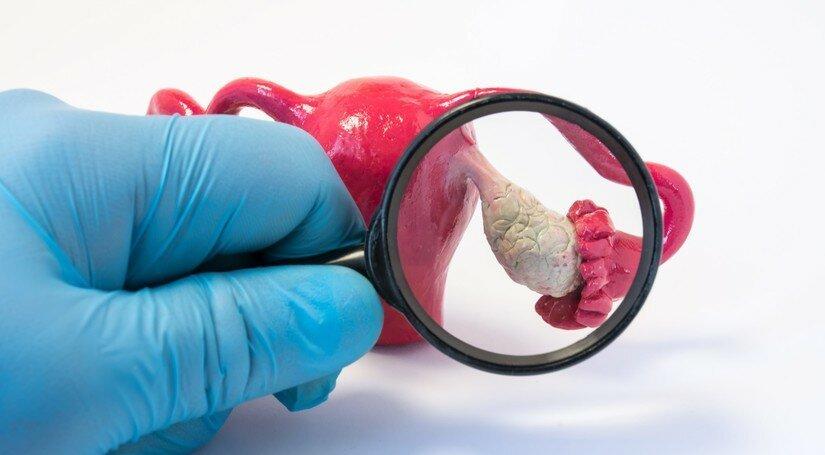Як проводиться хірургічне видалення фіброми?